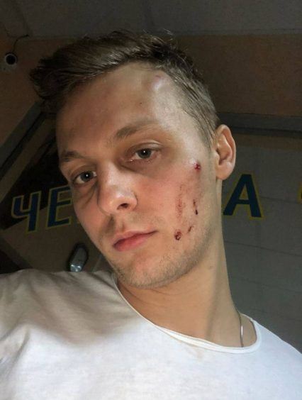 У київському ресторані побили сина нардепа Нестора Шуфрича