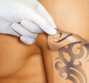 Неодимовые лазеры для удаления татуировок