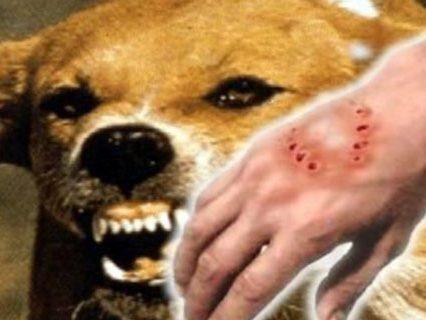 Скажені тварини – смертельна небезпека для життя і здоров'я людини. Що потрібно знати (ВІДЕО)