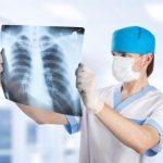 Хворі з відкритою формою туберкульозу опиняться на вулиці? Міфи та реальність